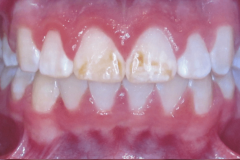 Case Study 61 – Brown Stains on teeth