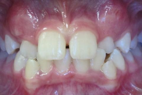 Case Study 29 – Narrow Smiles