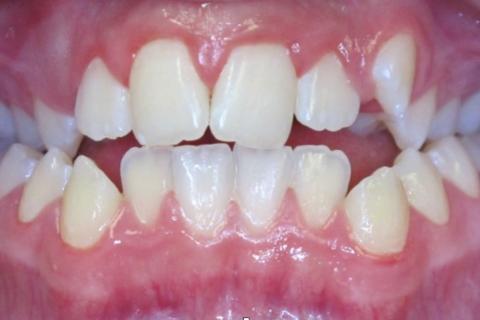 Case Study 31 – Narrow Smiles