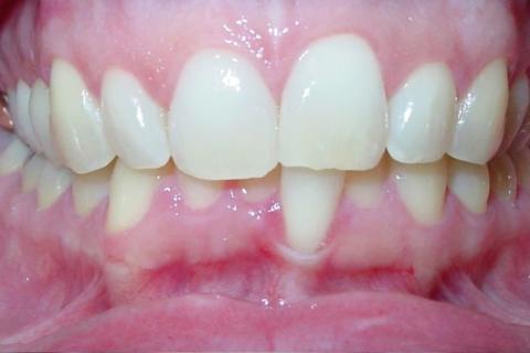 Case Study 33 – Narrow Smiles