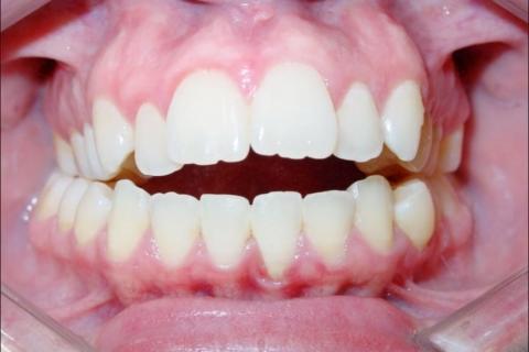 Case Study 36 – Open Bite