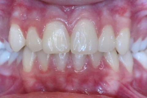 Case Study 24 – Narrow Smiles