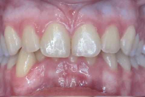 Case Study 16 – Narrow Smiles