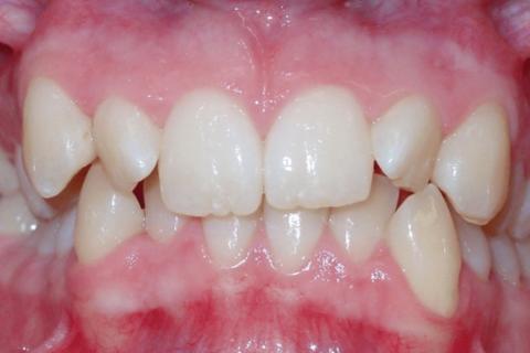 Case Study 17 – Narrow Smiles