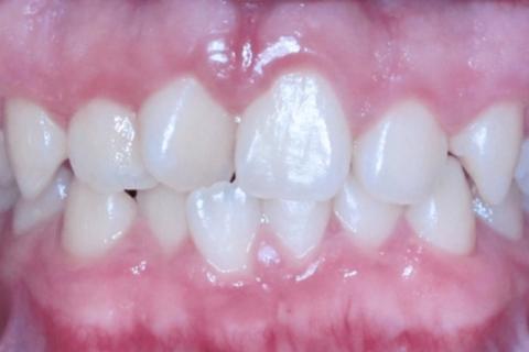 Case Study 18 – Narrow Smiles