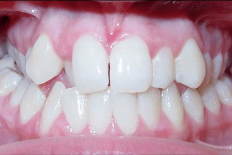 Case Study 19 – Narrow Smiles