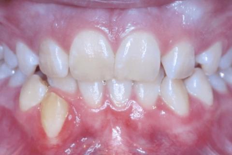 Case Study 20 – Narrow Smiles