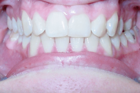 Case Study 57 – Short Tooth