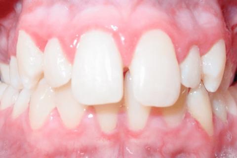 Case Study 58 – Length of teeth