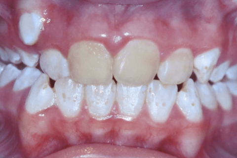 Case Study 59 – Brown Stains on Teeth