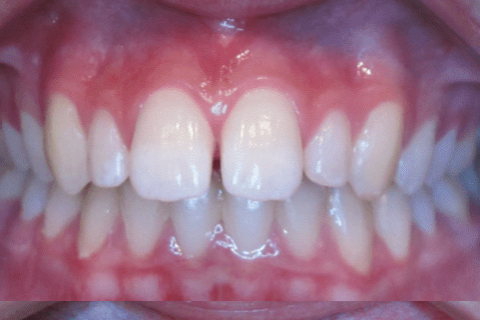 """Case Study 60 – Length of teeth and """"gummy"""" smile"""