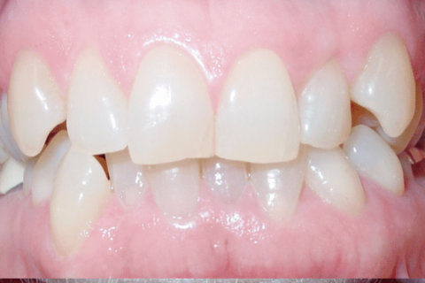 Case Studies 64 – Worn Edges of front tooth restored