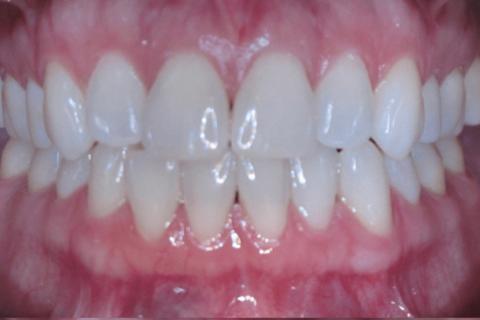 Case Study 66 – Smile Arc