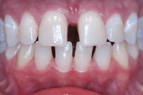 Case Study 67 – Spaces between teeth