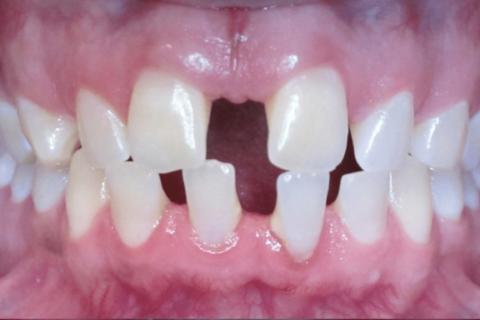 Case Study 68 – Spaces between teeth (Invisalign)