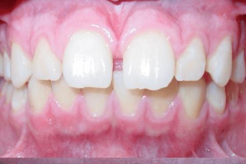 Case Study 69 – Spaces between upper front teeth (Invisalign)