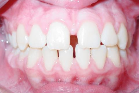 Case Study 70 – Spaces between teeth