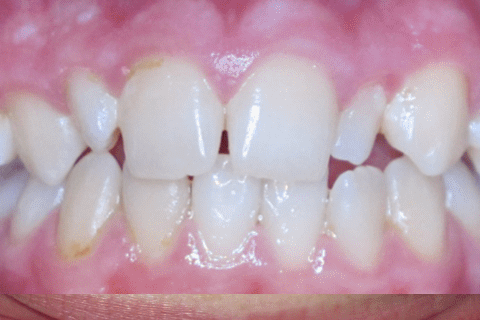 Case Study 50 – Premolar in the roof of the mouth