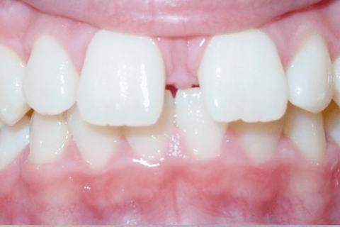 Case Study 73 – Second premolars impacted due to early loss of baby teeth