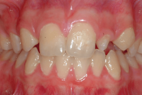 Case Study 77 – Missing upper right lateral incisor, peg upper left lateral incisor, and replaced both with dental implants