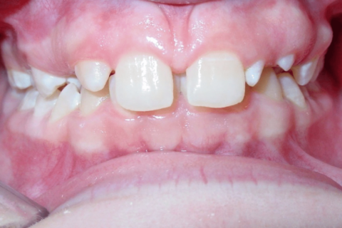 Case Study 78 – Missing upper right lateral incisor, peg upper left lateral incisor, and camouflaged the absence of both with moving the other teeth forward