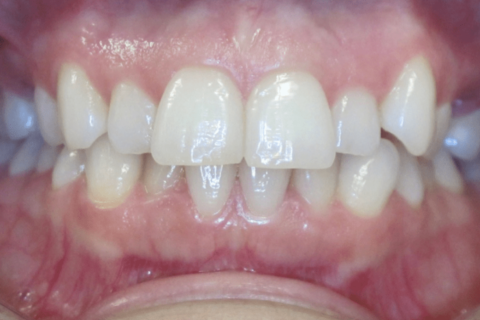 Case Study 79 – Missing upper second premolars, and camouflaged the absence of both with moving the other teeth forward