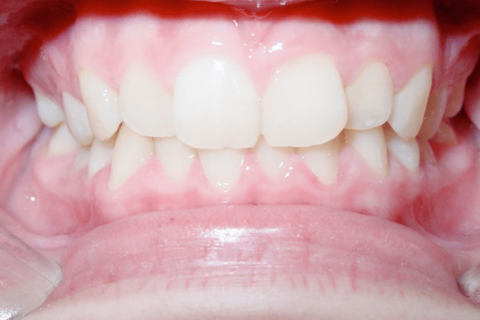Case Study 81 – Missing lower second premolars, and camouflaged the absence of both with moving the other teeth forward