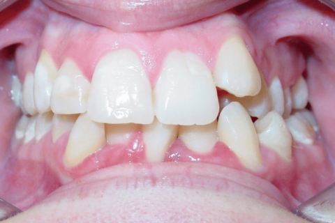 Case Study 83 – Missing a lower incisor, upper right first premolar, and upper left lateral incisor, camouflaged the absence of all three