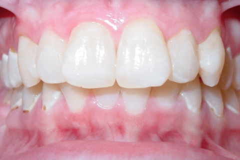 Case Study 84 – Missing a lower right first molar, and camouflaged the absence of both with moving the other teeth forward