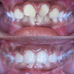 Bandeen Orthodontics Case Studies Early Treatment