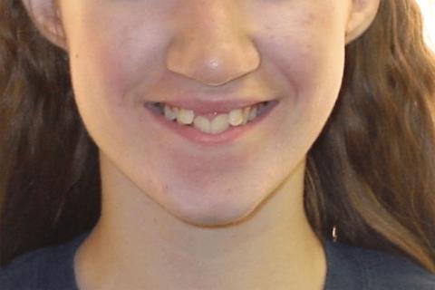 Case Study 7 – Orthodontic Class II