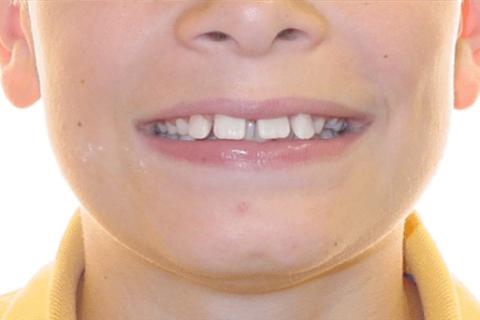 Case Study 6 – Orthodontic Class II
