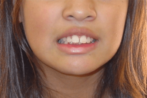 Case Study 2 – Orthodontic Class II