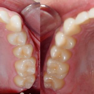 Bandeen Orthodontics Case Studies Full Treatment