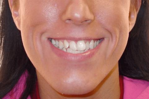 Case Study 12 – Orthodontic Class III