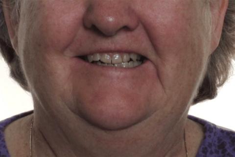 Case Study 10 – Orthodontic Class III