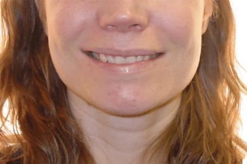 Case Study 1 – Orthodontic Class II