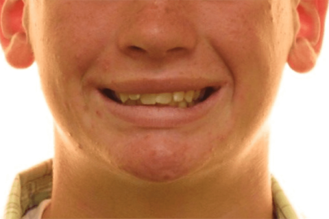 Case Study 3 – Orthodontic Class II