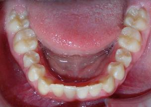 Bandeen Orthodontics Early Treatment