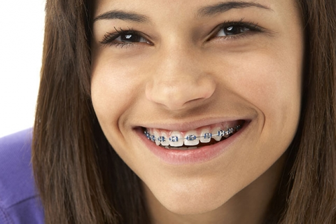 Orthodontic Treatment for Teens from Your Three Rivers Orthodontist, Bandeen Orthodontics